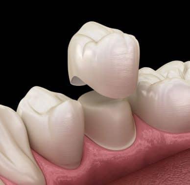 Treatment - Dental 22
